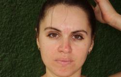 Грибок на лице: симптомы, причины и методы лечения