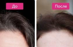 Стопседин спрей – эффективная защита от седых волос