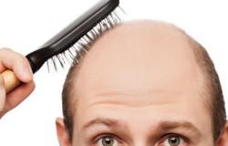 Облысение у мужчин: причины и современные способы лечения алопеции