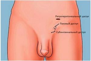 Операция Мармара при варикоцеле: подготовка и проведение