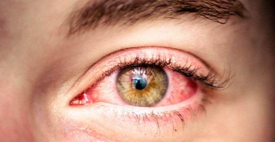 Как производится лечение аллергии на глазах