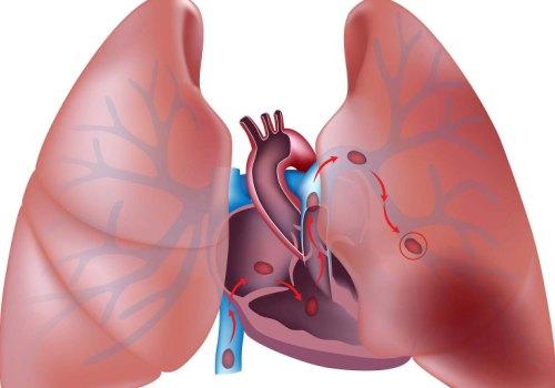Причины и методы диагностики эмболии. Лечение заболевания и возможные последствия