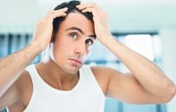 Современные и действенные способы лечения облысения у мужчин