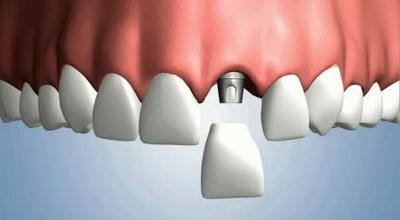 Основные преимущества установки зубных имплантов в Клинике Доктора Глушко
