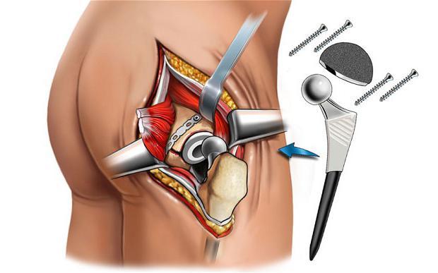 Какие особенности предусматривает эндопротезирование тазобедренного сустава