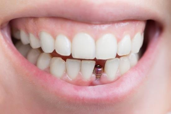 Имплантация зубов – эффективная методика восстановления зубного ряда