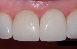 Преимущества и виды цельнокерамических коронок на зубы