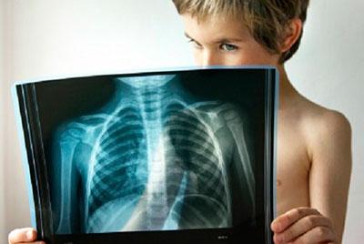 Pnevmoniya-u-detej-diagnostika-768x515