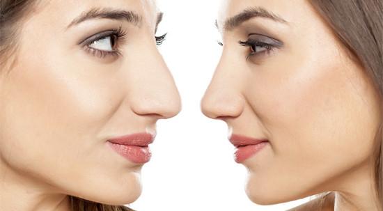 Ринопластика важная операция по исправлению носа