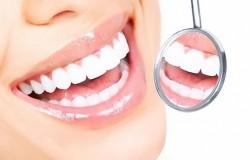 Как сделать свои зубы белыми в домашних условиях?