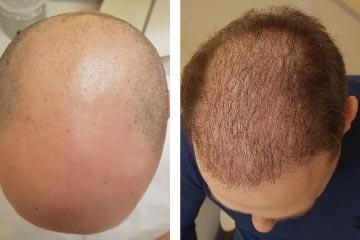 Подготовка до пересадки волос.