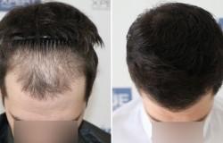 Как работает пересадка волос у мужчин